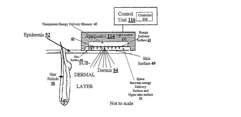 shr laser technology